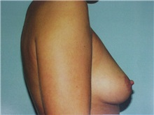 Breast Augmentation Before Photo by Richard Greco, MD; Savannah, GA - Case 2259