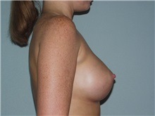 Breast Augmentation After Photo by Richard Greco, MD; Savannah, GA - Case 2374