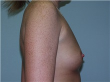 Breast Augmentation Before Photo by Richard Greco, MD; Savannah, GA - Case 2374