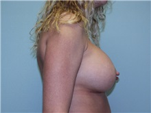 Breast Augmentation After Photo by Richard Greco, MD; Savannah, GA - Case 2410