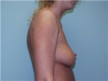 Breast Augmentation Before Photo by Richard Greco, MD; Savannah, GA - Case 2410