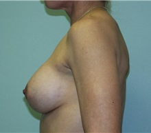 Breast Augmentation After Photo by Richard Greco, MD; Savannah, GA - Case 2428