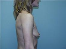 Breast Augmentation Before Photo by Richard Greco, MD; Savannah, GA - Case 2446