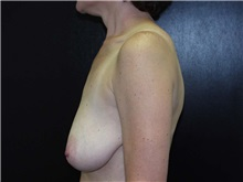Breast Augmentation Before Photo by Richard Greco, MD; Savannah, GA - Case 2484