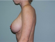 Breast Augmentation After Photo by Richard Greco, MD; Savannah, GA - Case 2519