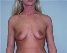 Breast Augmentation Before Photo by Richard Greco, MD; Savannah, GA - Case 2538
