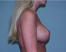 Breast Augmentation After Photo by Richard Greco, MD; Savannah, GA - Case 2538