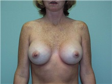 Breast Augmentation After Photo by Richard Greco, MD; Savannah, GA - Case 2557