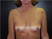 Breast Augmentation Before Photo by Richard Greco, MD; Savannah, GA - Case 2557