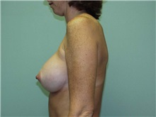 Breast Augmentation After Photo by Richard Greco, MD; Savannah, GA - Case 2557