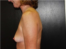 Breast Augmentation Before Photo by Richard Greco, MD; Savannah, GA - Case 2557