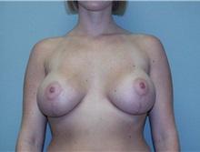 Breast Augmentation After Photo by Richard Greco, MD; Savannah, GA - Case 2595