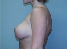 Breast Augmentation After Photo by Richard Greco, MD; Savannah, GA - Case 2595