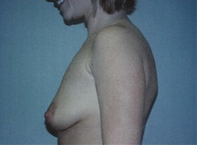 Breast Augmentation Before Photo by Richard Greco, MD; Savannah, GA - Case 2595