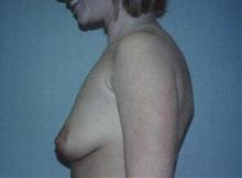 Breast Augmentation Before Photo by Richard Greco, MD; Savannah, GA - Case 2595