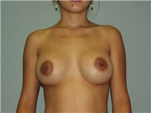 Breast Augmentation After Photo by Richard Greco, MD; Savannah, GA - Case 2633