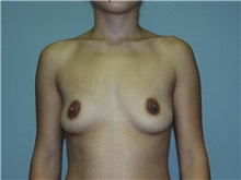 Breast Augmentation Before Photo by Richard Greco, MD; Savannah, GA - Case 2633