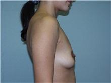 Breast Augmentation Before Photo by Richard Greco, MD; Savannah, GA - Case 2633