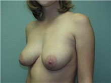 Breast Augmentation Before Photo by Richard Greco, MD; Savannah, GA - Case 2671