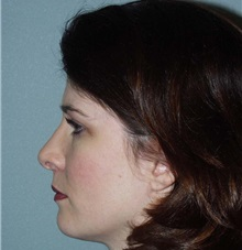 Rhinoplasty After Photo by Richard Greco, MD; Savannah, GA - Case 2696