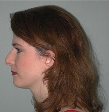 Rhinoplasty Before Photo by Richard Greco, MD; Savannah, GA - Case 2696