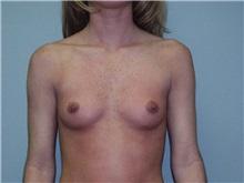 Breast Augmentation Before Photo by Richard Greco, MD; Savannah, GA - Case 2742