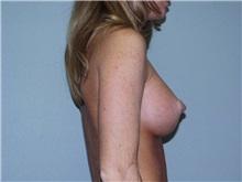 Breast Augmentation After Photo by Richard Greco, MD; Savannah, GA - Case 2742
