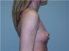 Breast Augmentation Before Photo by Richard Greco, MD; Savannah, GA - Case 2742
