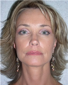 Facelift After Photo by Richard Greco, MD; Savannah, GA - Case 30631