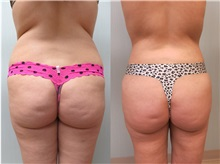 Liposuction After Photo by Richard Greco, MD; Savannah, GA - Case 30633