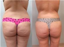 Liposuction After Photo by Richard Greco, MD; Savannah, GA - Case 30633