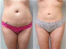 Liposuction Before Photo by Richard Greco, MD; Savannah, GA - Case 30633