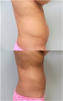 Tummy Tuck After Photo by Richard Greco, MD; Savannah, GA - Case 30643