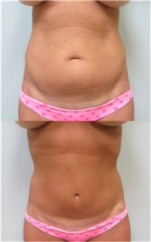Tummy Tuck Before Photo by Richard Greco, MD; Savannah, GA - Case 30643