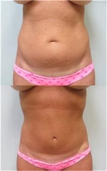 Tummy Tuck Before Photo by Richard Greco, MD; Savannah, GA - Case 30643