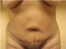 Tummy Tuck After Photo by Richard Greco, MD; Savannah, GA - Case 30645