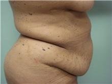 Tummy Tuck Before Photo by Richard Greco, MD; Savannah, GA - Case 30645