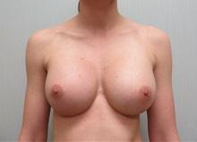 Breast Augmentation After Photo by Richard Greco, MD; Savannah, GA - Case 30648