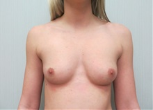 Breast Augmentation Before Photo by Richard Greco, MD; Savannah, GA - Case 30648