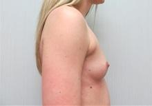 Breast Augmentation Before Photo by Richard Greco, MD; Savannah, GA - Case 30648