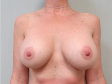 Breast Augmentation After Photo by Richard Greco, MD; Savannah, GA - Case 30649