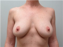 Breast Augmentation Before Photo by Richard Greco, MD; Savannah, GA - Case 30649