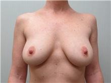 Breast Augmentation Before Photo by Richard Greco, MD; Savannah, GA - Case 30649