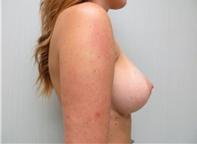 Breast Augmentation After Photo by Richard Greco, MD; Savannah, GA - Case 30650