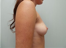 Breast Augmentation Before Photo by Richard Greco, MD; Savannah, GA - Case 30650
