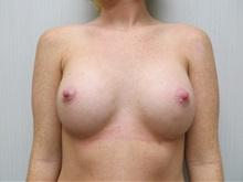 Breast Augmentation After Photo by Richard Greco, MD; Savannah, GA - Case 30651