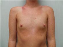 Breast Augmentation Before Photo by Richard Greco, MD; Savannah, GA - Case 30651
