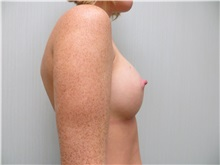 Breast Augmentation After Photo by Richard Greco, MD; Savannah, GA - Case 30651