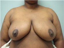 Breast Reduction After Photo by Richard Greco, MD; Savannah, GA - Case 30652