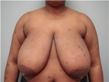 Breast Reduction Before Photo by Richard Greco, MD; Savannah, GA - Case 30652
